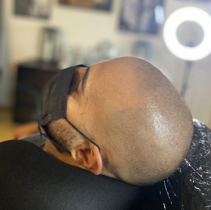 Återställning till naturlig hårfyllnad