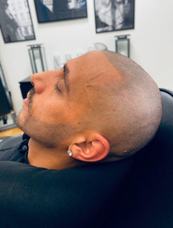 Återställning till markerad hårfyllnad