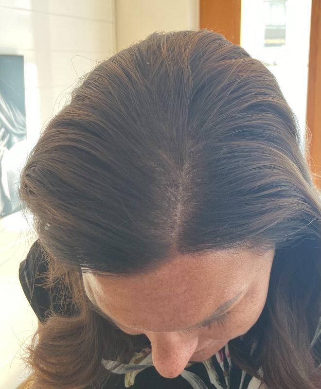Återställning av kvinnligt håravfall