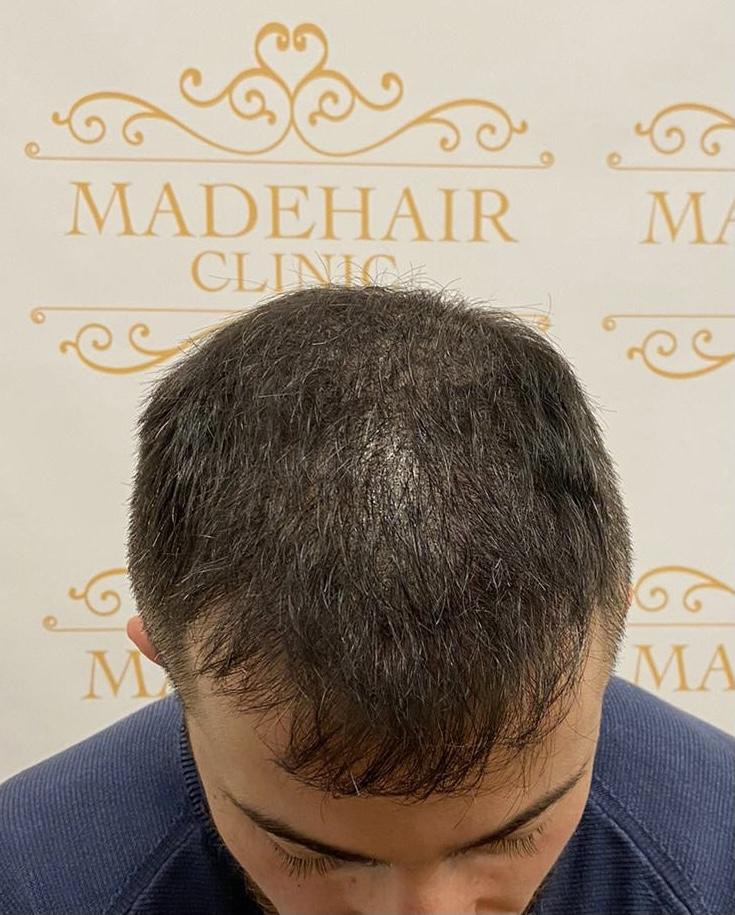 Återställning av naturlig hårfyllnad av naturlig hårfyllnad