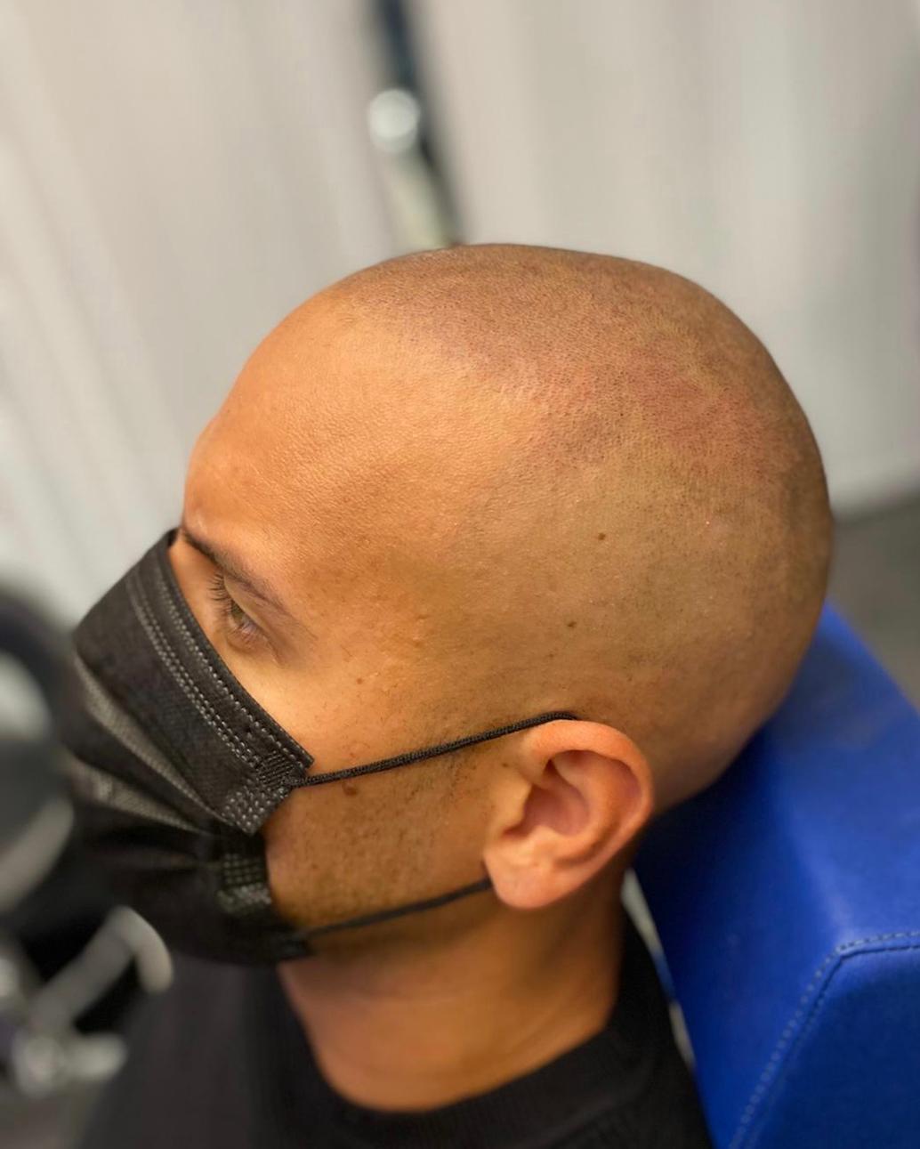 Naturlig hårlinje