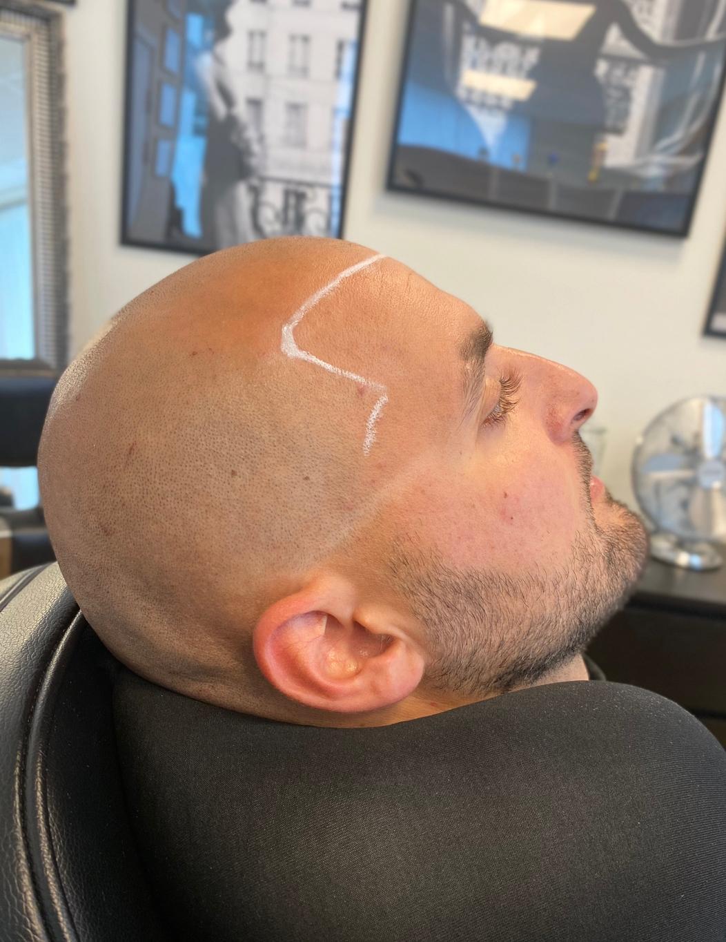 Markerad hårlinje