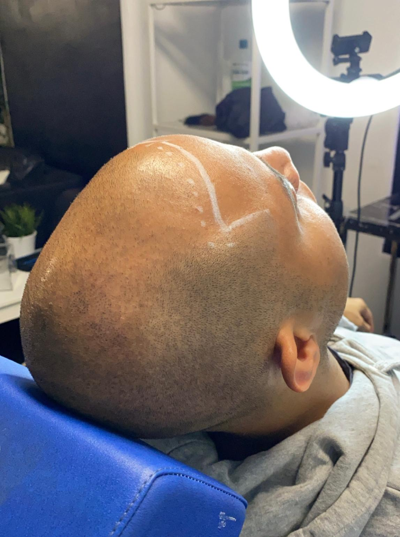 alopeci behandling