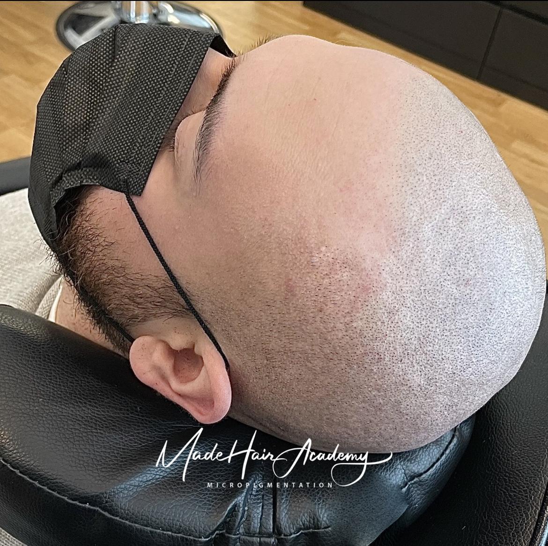 scalp micropigmentation Stockholm